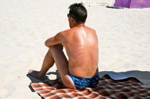 Unbedeckte Körperstellen sind sorgfältig zu schützen